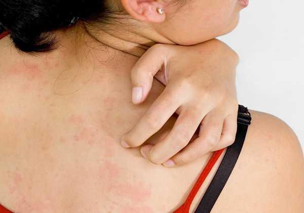Οι αλλεργίες του καλοκαιριού