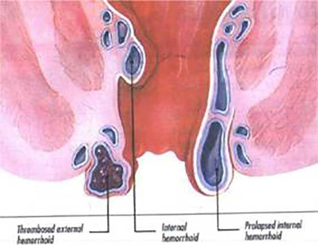 Αιμορροΐδες: ποια είναι η κατάλληλη αντιμετώπιση-θεραπεία;