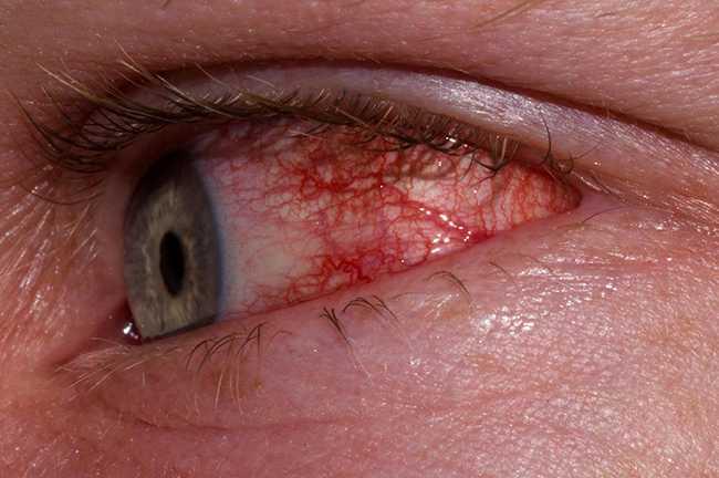 Εαρινές αλλεργίες στα μάτια