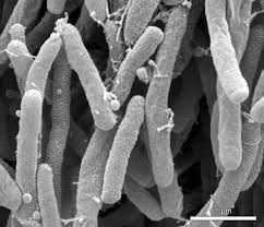 Ενημέρωση από τη Δ/νση Αγροτικής Οικονομίας και Κτηνιατρικής Π.Ε. Κοζάνης για το Xylella fastidiosa το βακτήριο που είναι ένα από τα πιο επικίνδυνα των φυτών παγκοσμίως